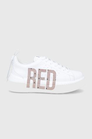 Red Valentino - Buty skórzane