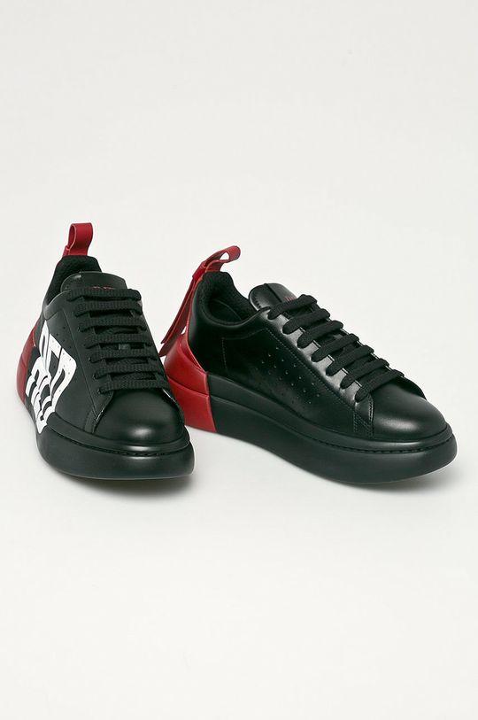 Red Valentino - Kožená obuv čierna