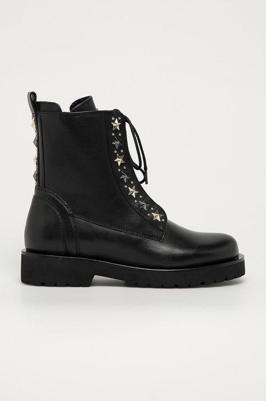 čierna Twinset - Kožené členkové topánky Dámsky