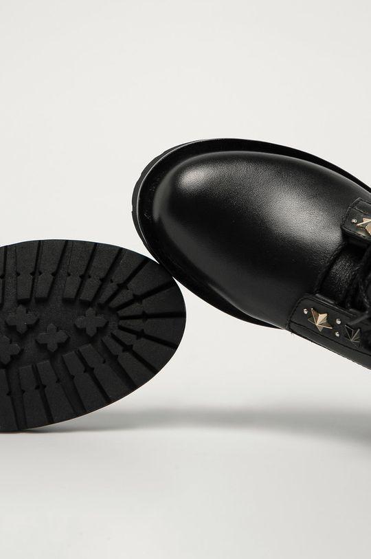 čierna Twinset - Kožené členkové topánky