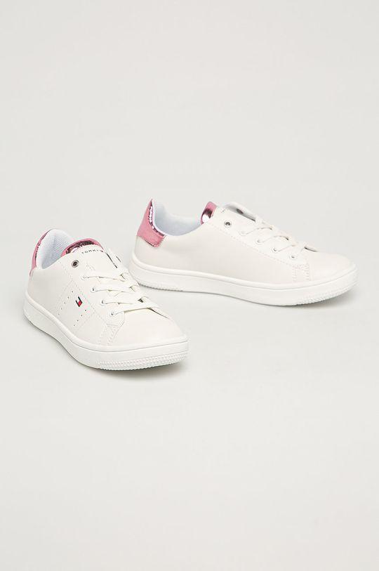 Tommy Hilfiger - Detské topánky ružová