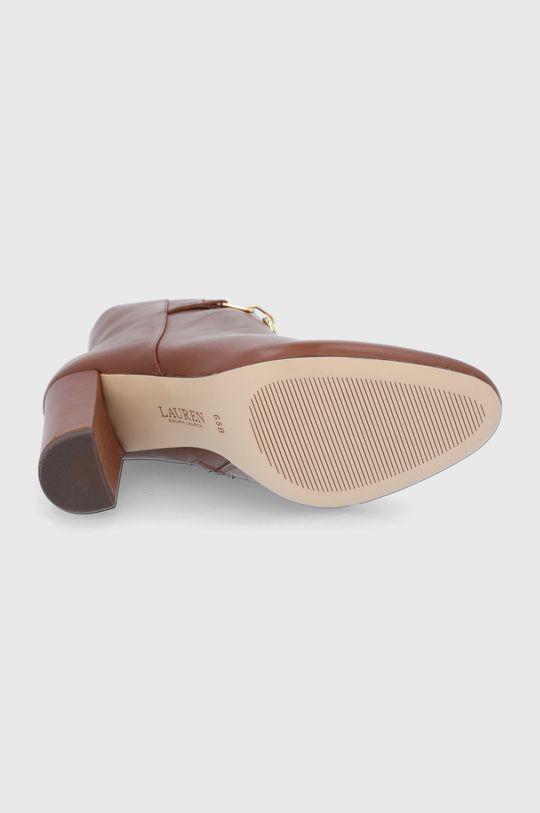 Lauren Ralph Lauren - Kožené kotníkové boty Dámský