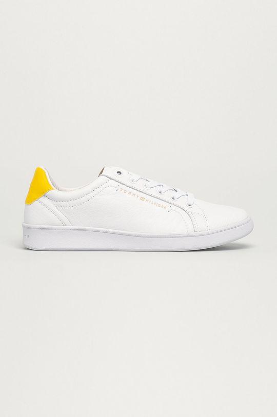 žlutá Tommy Hilfiger - Kožené boty Dámský