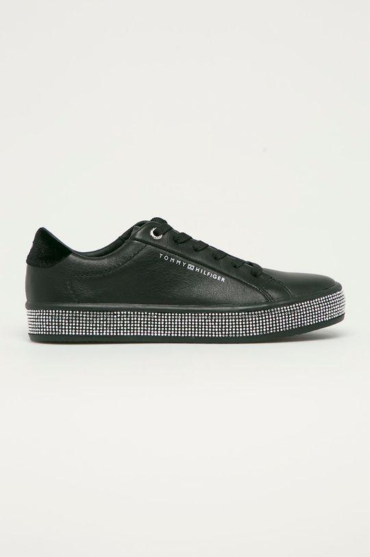 čierna Tommy Hilfiger - Kožená obuv Dámsky