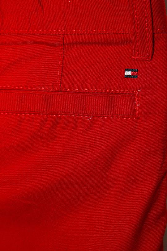 Tommy Hilfiger - Detské krátke nohavice 92-176 cm červená