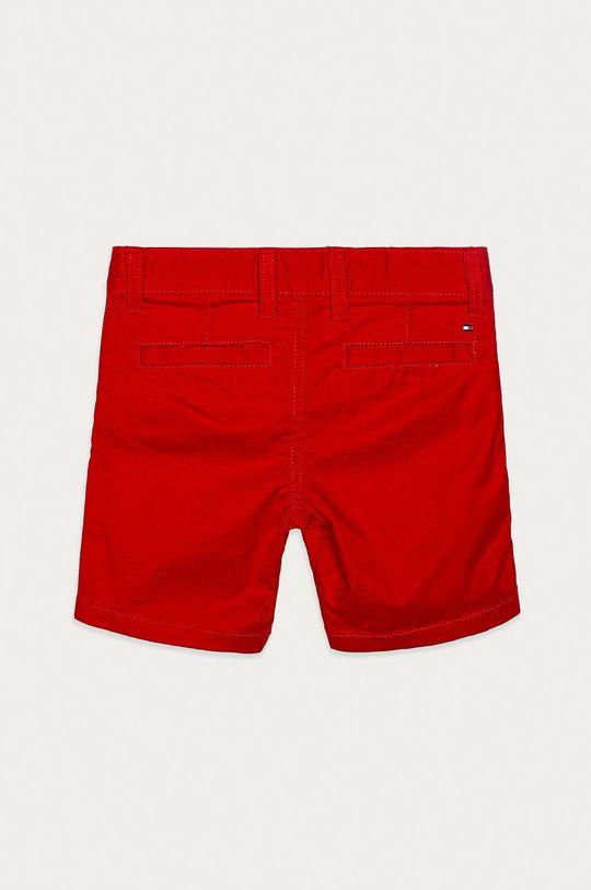 Tommy Hilfiger - Detské krátke nohavice 92-176 cm  97% Bavlna, 3% Elastan